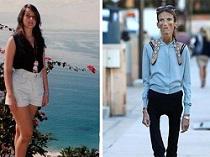 La mujer más anoréxica del mundo habla de su enfermedad