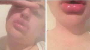 labios-botella